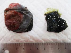胆のう粘液腫